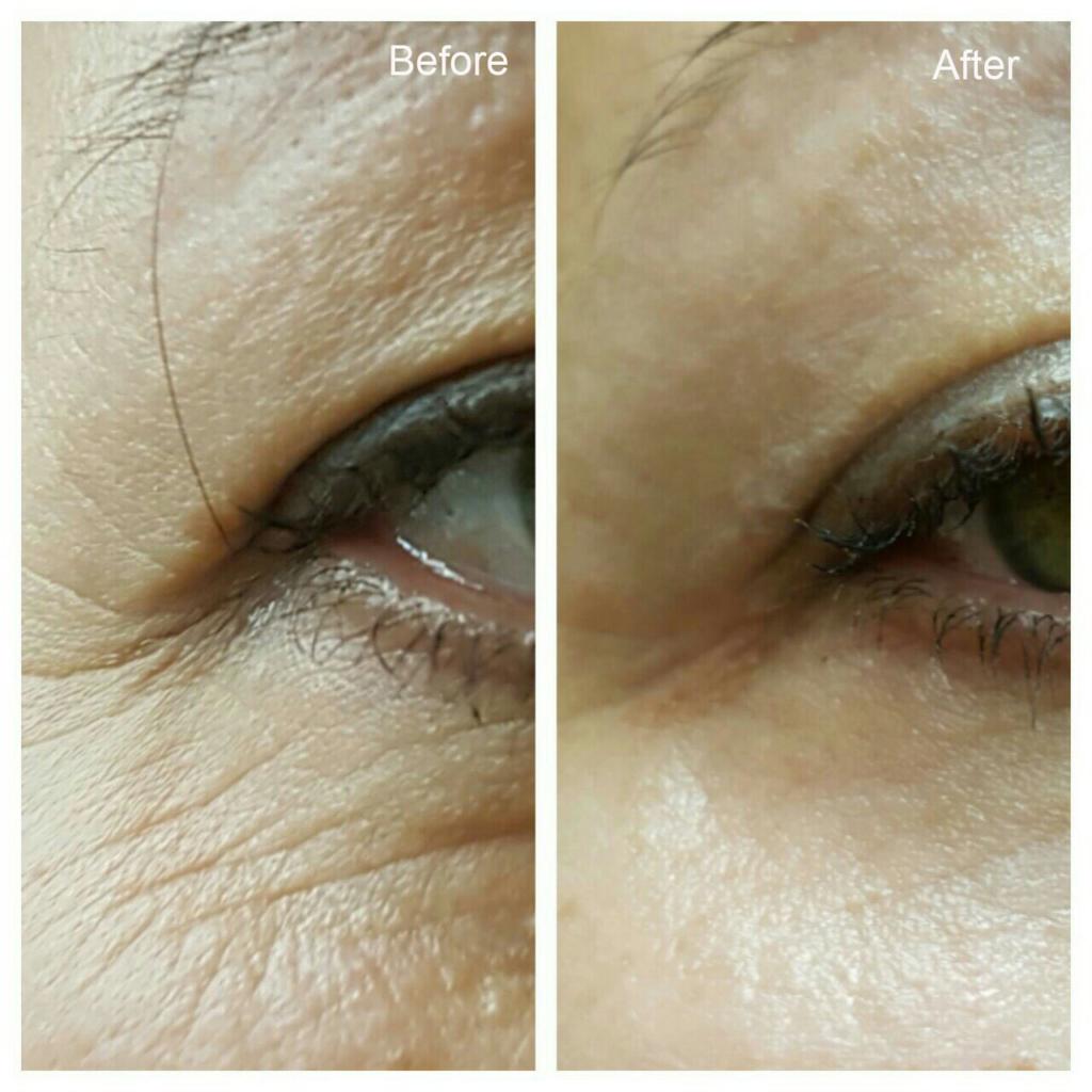 карбокситерапия лица фото до и после микросхему